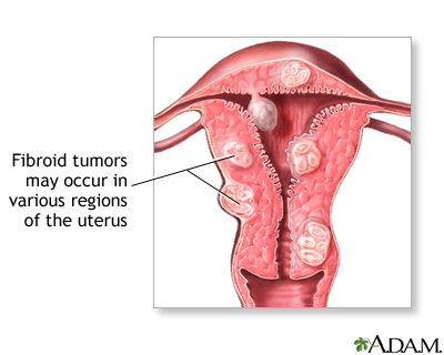 Fibroid: Cause, Cure, Complications, prevention – The Nigerian case!