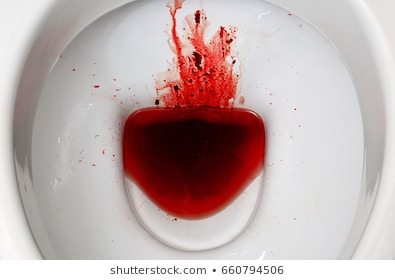 What is the Cause of Seeing Fresh Blood When You Go To Toilet in a 50 year old?