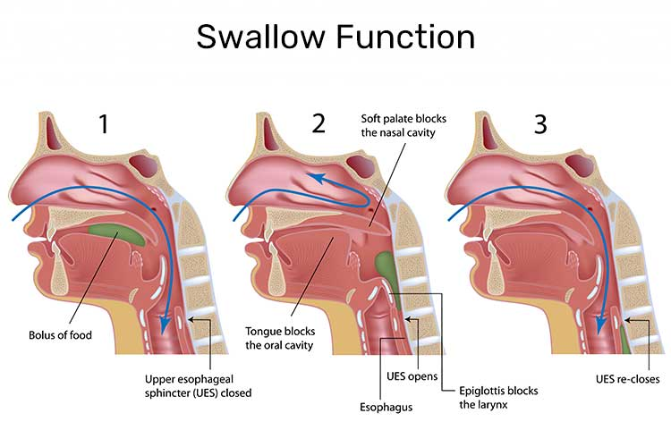 Feeling Pains when swallowing: 24 Possible causes!