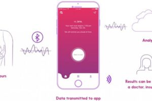 Cyrcadia breast health monitor discovered